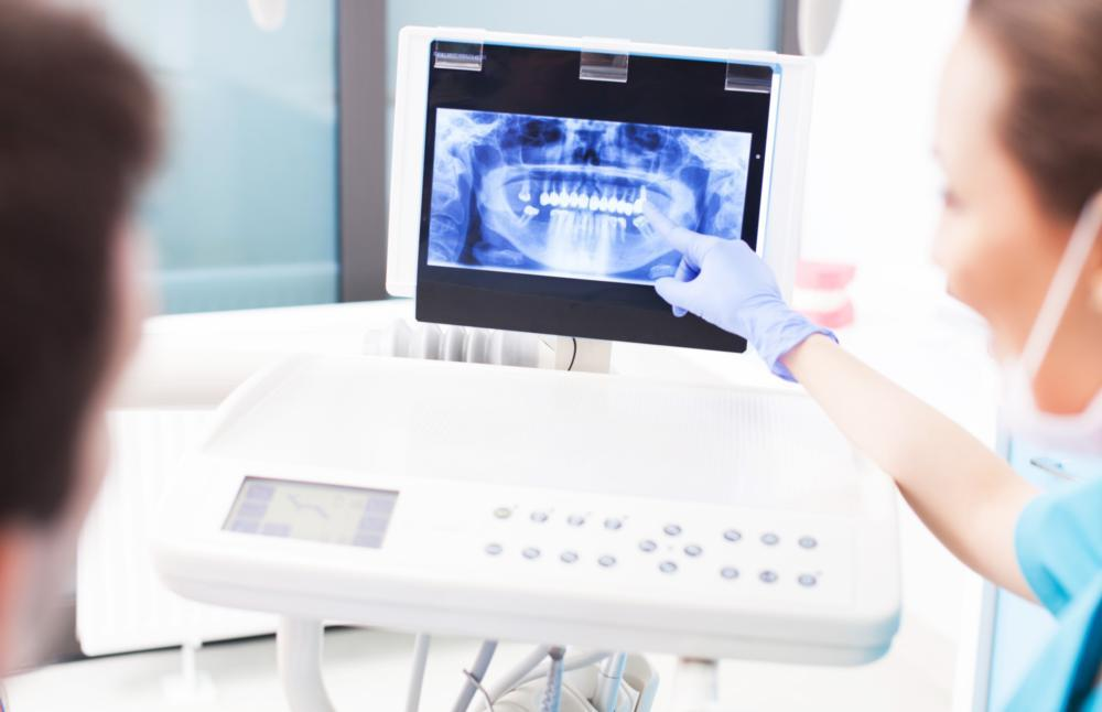Dentist Explaining X-Ray Results | Crowns in Fairfax