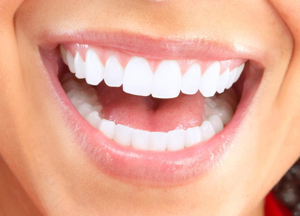 Up Close Smile | Invisalign in Fairfax