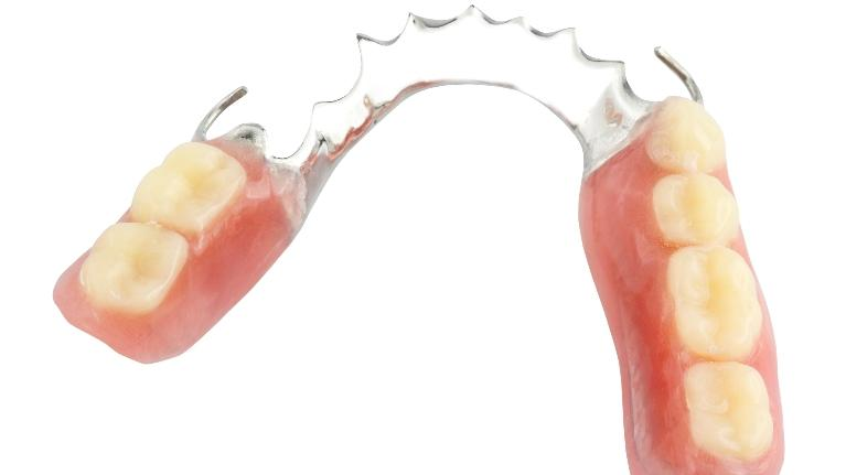 Dentures | Dentures in Fairfax VA