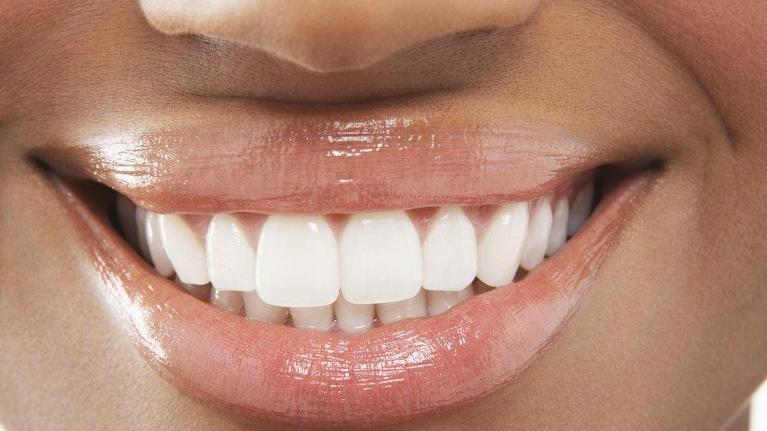 Cosmetic Dentistry in Fairfax